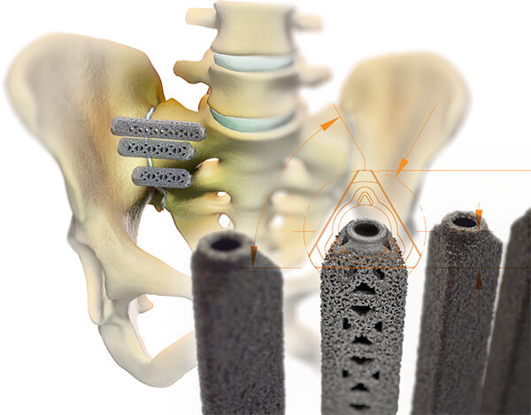 sacroiliac joint disorder implant placement image