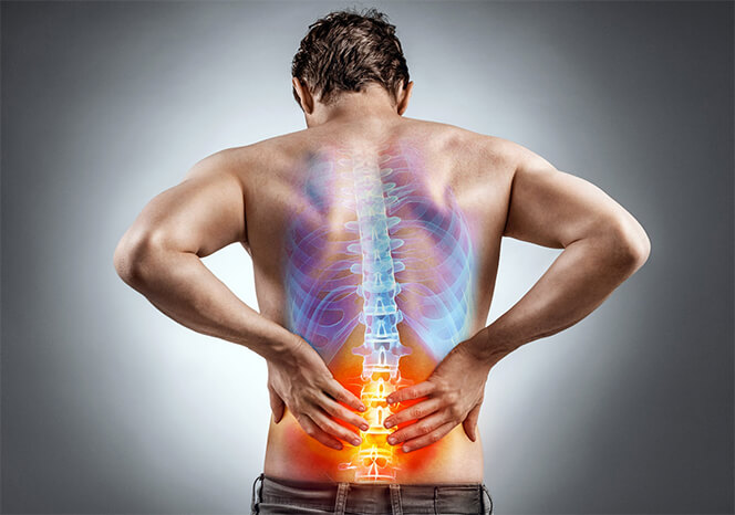 a man with spinal stenosis standing with his hands on his lower backback