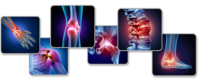 joint pain images